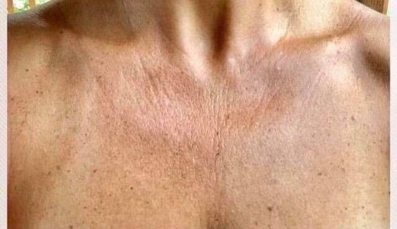 Sun Exposure causes skin damage